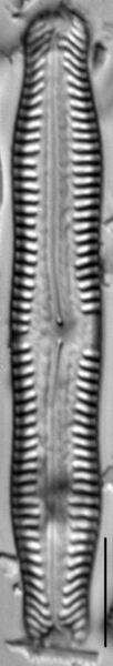 Pinnularia nodosa LM2