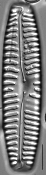 Pinnularia rabenhorstii LM2