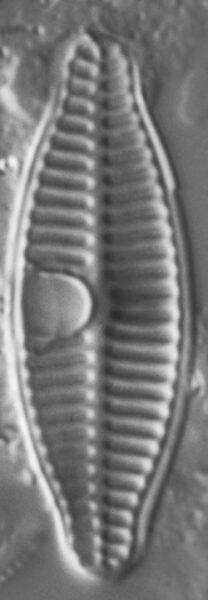 Planothidium Incuriatum LM3