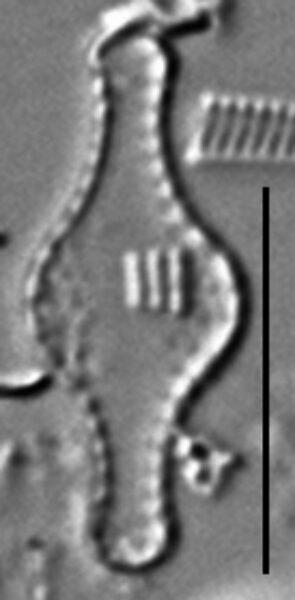 Pseudostaurosira pseudoconstruens LM4