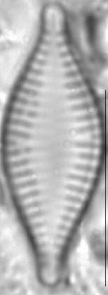 Pseudostaurosira parasitica LM5