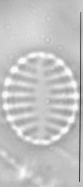 Pseudostaurosira trainorii LM3