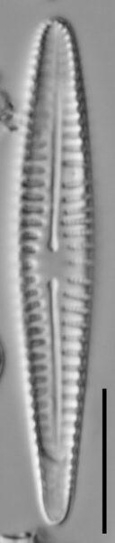 Rhoicosphenia californica LM4