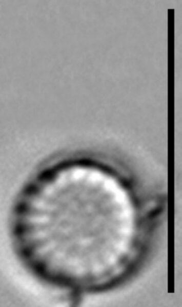 Stephanodiscus parvus LM1