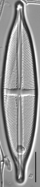 Stauroneis anceps LM1