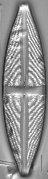 Stauroneis circumborealis LM1