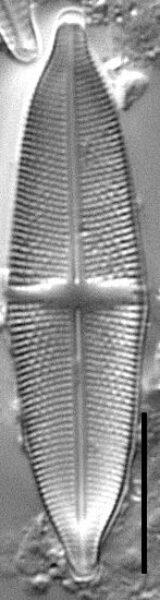 Stauroneis livingstonii LM1