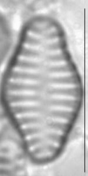 Staurosira construens var binodis LM2