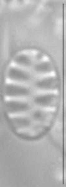 Staurosirella pinnata LM5