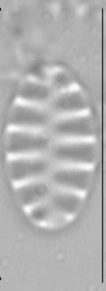 Staurosirella pinnata LM4