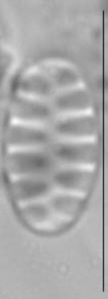 Staurosirella pinnata LM3