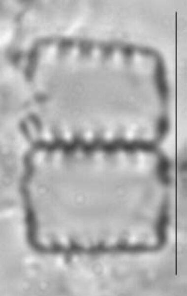 Staurosirella pinnata LM2