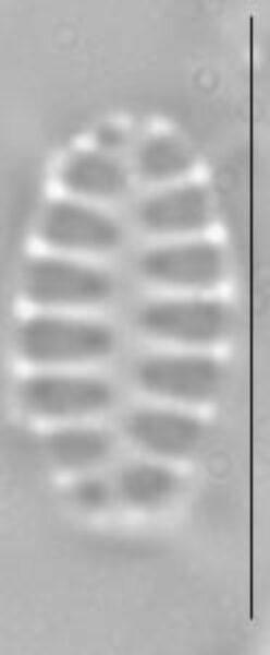 Staurosirella pinnata LM1