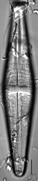 Stauroneis thompsonii LM6