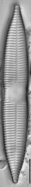 Synedra goulardi LM1