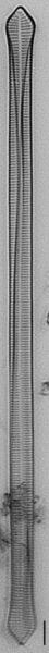 Ulnaria Capitata LM5