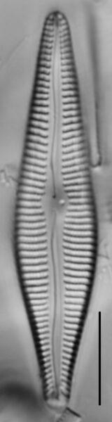 Gomphoneis eriense var. angularis LM1