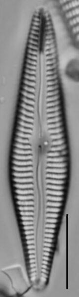 Gomphoneis eriense var. angularis LM4