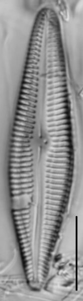 Gomphoneis eriense var. angularis LM5