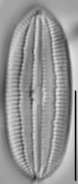 Diploneis marinestriata LM7