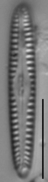 Gomphonema apuncto LM2