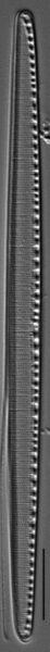 Filiformis Gc106965H008
