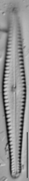 Gomphonema louisiananum LM1