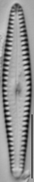 Gomphonema louisiananum LM4