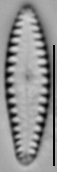 Gomphonema louisiananum LM7