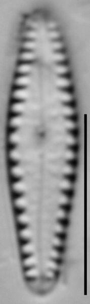 Gomphonema louisiananum LM6