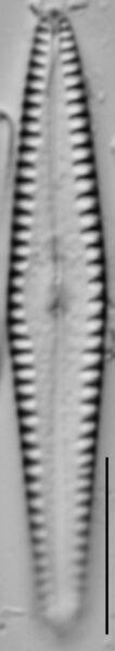 Gomphonema louisiananum LM2