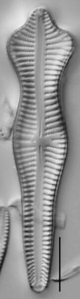 Gomphonema Acuminatum 001