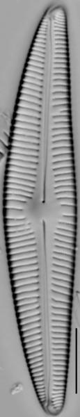 Encyonema hebridicum LM1