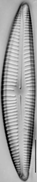Encyonema hebridicum LM2