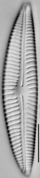 Encyonema hebridicum LM3