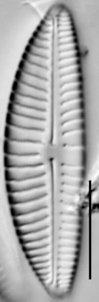 Encyonema hebridicum LM6