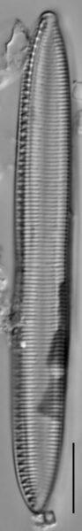 Tryblionella hungarica LM5