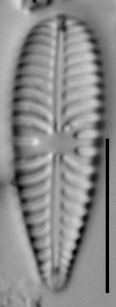 Gomphoneis olivaceum LM7