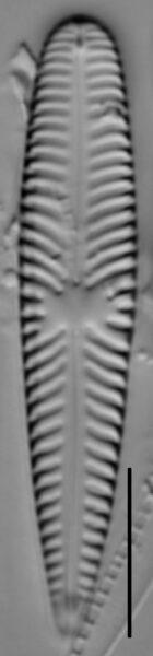 Gomphoneis olivaceum LM5