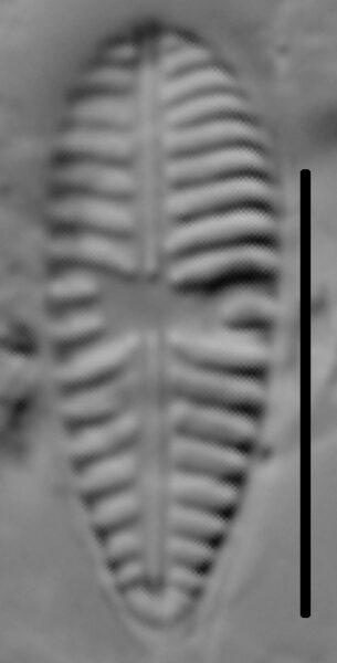 Gomphoneis olivaceum LM4