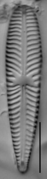 Gomphoneis olivaceum LM3