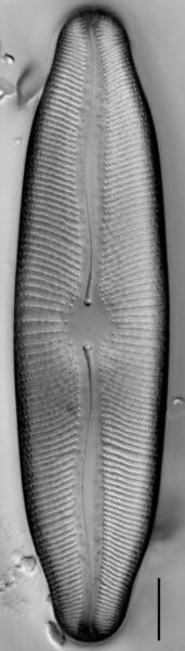 Rexlowea navicularis LM2