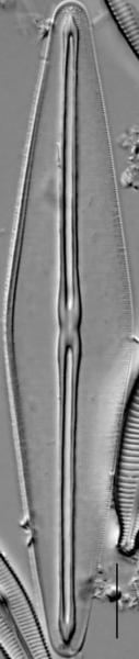 Frustulia saxonica LM7