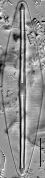 Frustulia saxonica LM3