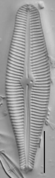 Gomphoneis eriense var variabilis LM5