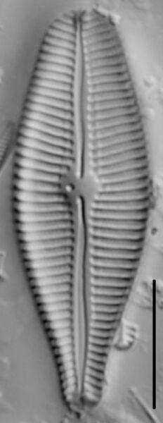 Gomphoneis eriense var variabilis LM1