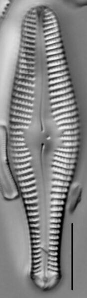 Gomphonema ventricosum LM5