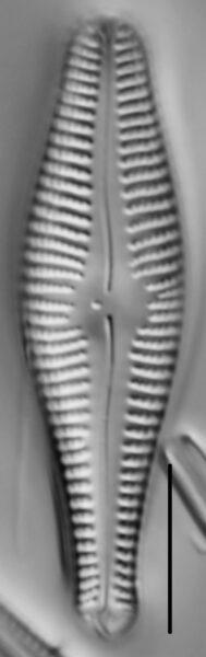 Gomphonema ventricosum LM3
