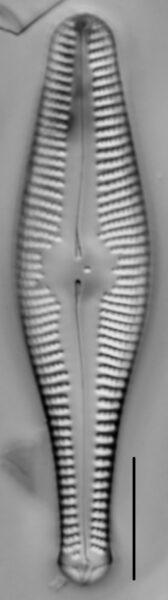 Gomphonema ventricosum LM1