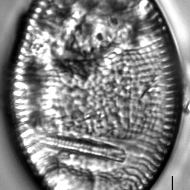 Achnanthes undulorostrata LM4